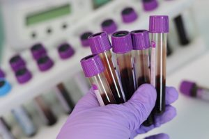 A purple gloved hand holds five vials of blood for hepatitis testing