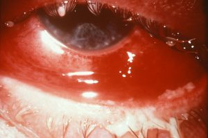 Conjunctivitis due to gonorrhea. Swollen red eye with cloudy discharge
