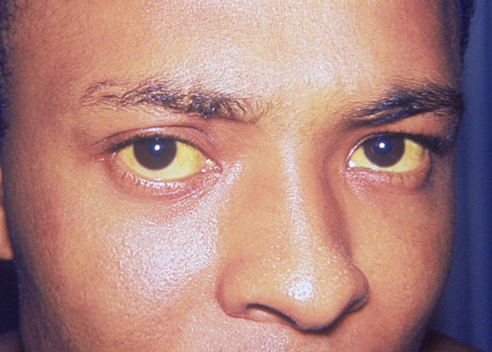 Jaundice, or yellowing of the whites of the eyes, caused by Hepatitis A