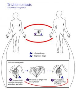 Life cycle of trichomoniasis