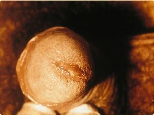 Penile discharge caused by chlamydia.