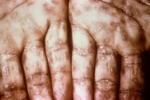 Secondary syphilis rash on the palms of the hand.