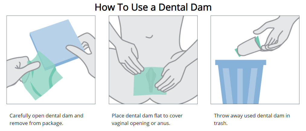 An illustration showing how to correctly use a dental dam for protection during oral sex.