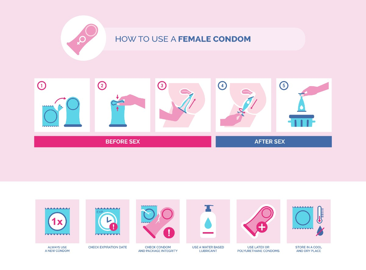 How to use a female condom instructions and tips: contraception and sexually transmitted disease prevention.