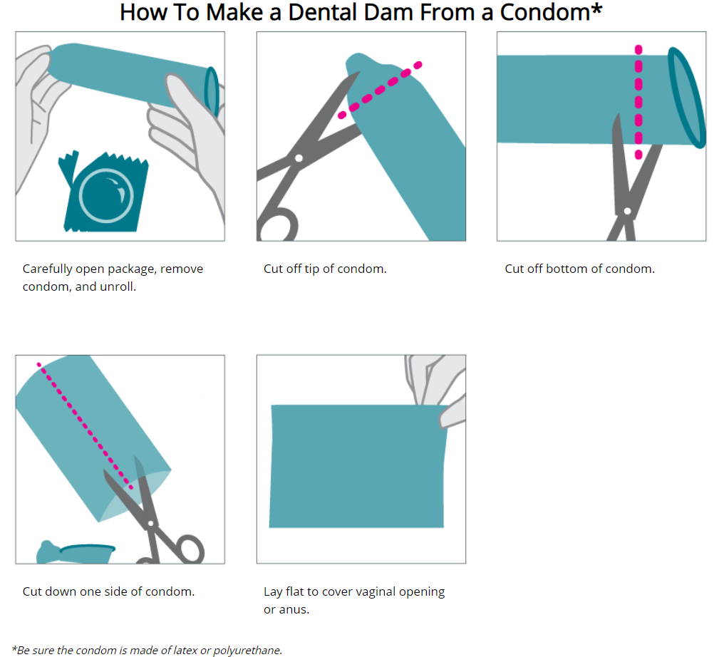 Illustration showing a step-by-step process to making your own dental dam out of a male or external latex condom.